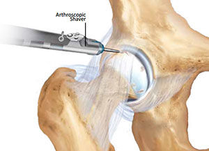 Treatment of Articular Cartilage Injuries